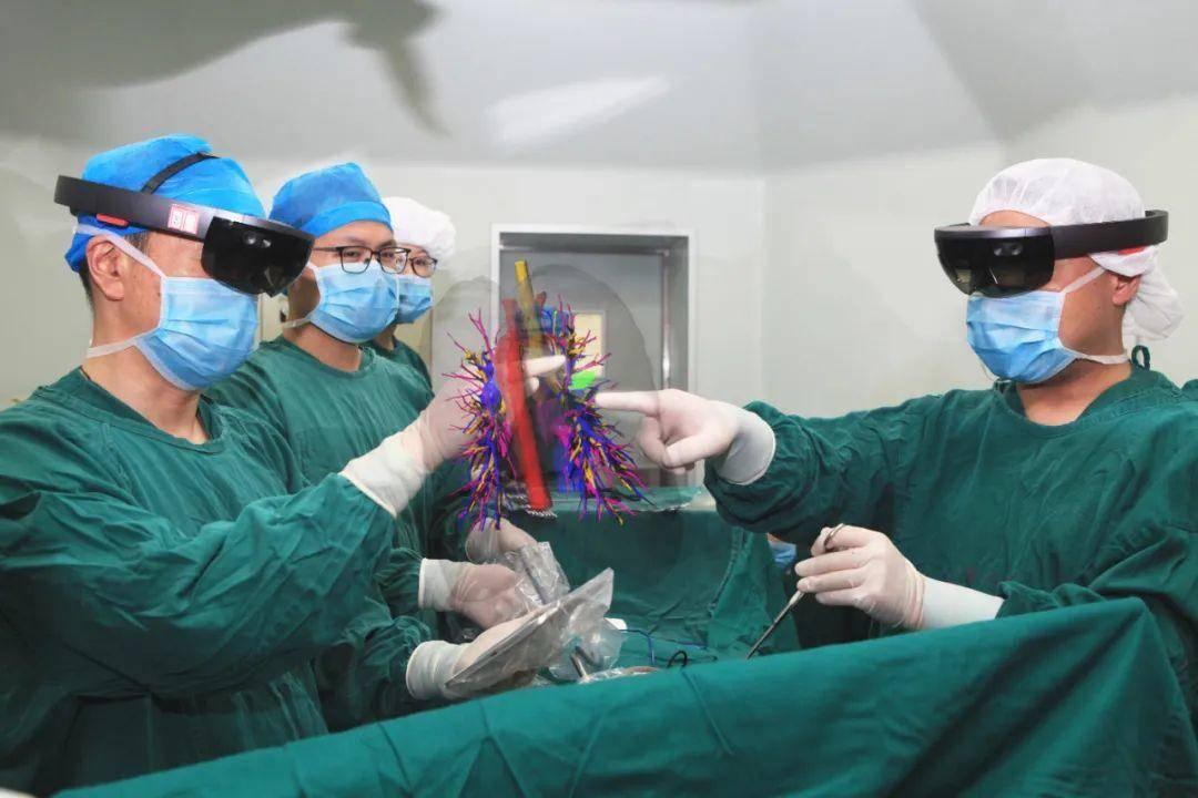 陈亮教授团队为一名56岁患右上肺恶性肿瘤的女患者成功实施了世界首例混合现实(MR)技术辅助下的肺肿瘤切除术。 通讯员 董菊供图